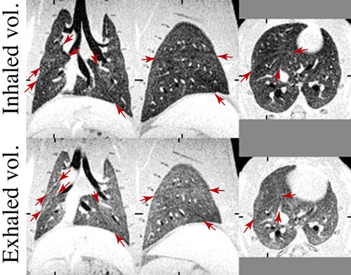 ABQMR Lung Imaging